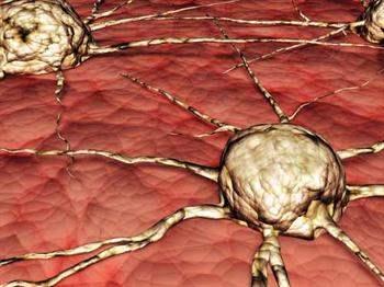 Beyin tümörü tedavisinde kemoterapinin işlevi