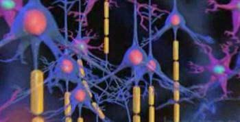 Parsiyel epilepsi nöbeti