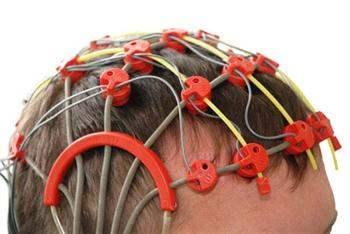 Yaygın epilepsi nöbeti