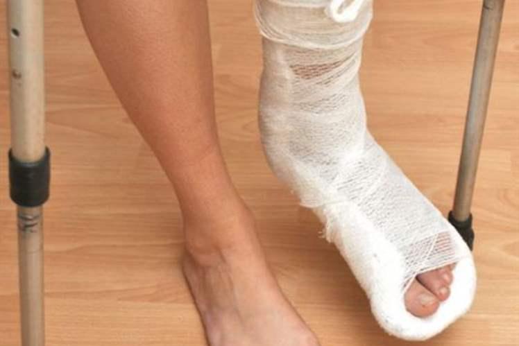 Ayak Bileği Kırığı Tedavisi