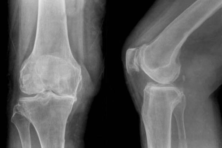 Bacak Kırığı Tedavisi