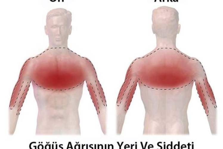 Göğüs Ağrısı Tedavisi