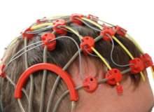 Epilepsi (Sara) Tedavisi