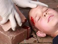 Baş Yaralanması Tedavisi