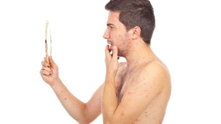 Bakteriyel Ve Viral Döküntülerde Tedavi