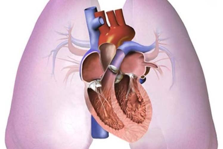 Akciğer Embolisi