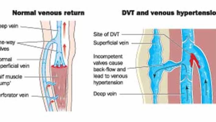 Bacakta Kan Pıhtısı (Derin Ven Trombozu)