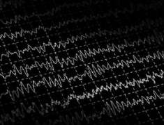 Epilepsi (Tonik Klonik Veya Büyük Nöbet Epilepsi)