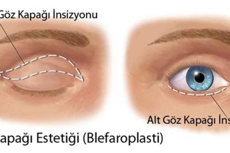 Gevşek Gözkapağı Sendromu