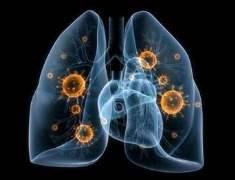 Bakteriyel Akciğer Enfeksiyonu