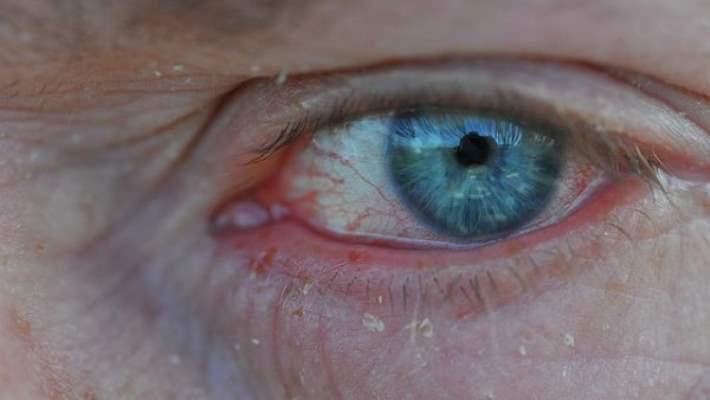 Göz Alerjileri