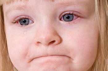 Göz Yangısı (Konjunktivit): Sebepleri, Belirtileri ve Tedavileri