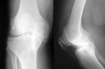 Osteoartriti Anlamak İçin Görsel Rehber