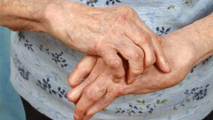Romatoid Artriti Anlamak