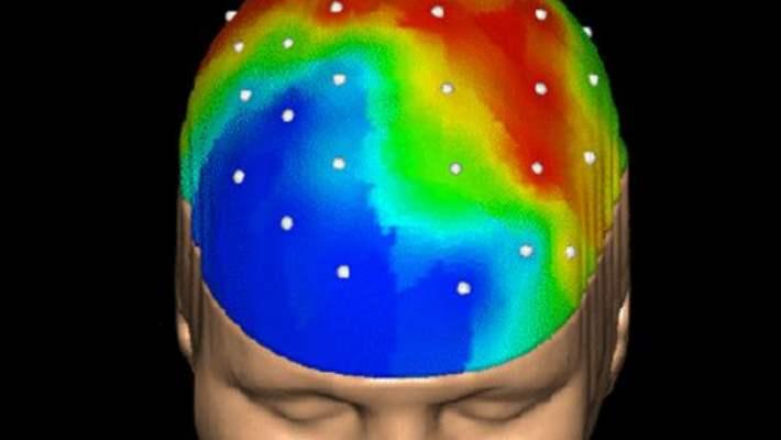 Beyin Sarsıntısı