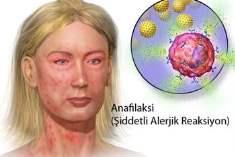 Anaflaksi (Şiddetli Alerjik Reaksiyon)