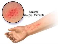 Dermatit  (Deri İltihabı)