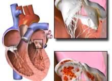 Endokardit (Kalp İç Zarı İltihabı)