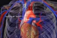 Aort Kapak Yetmezliği