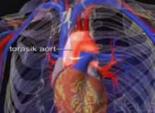 Aort Yırtılması (Diseksiyon)