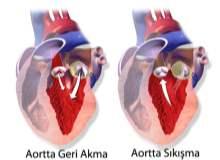 Aortik Kapak Regürjitasyonu