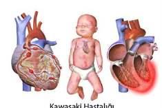 Kawasaki Hastalığı