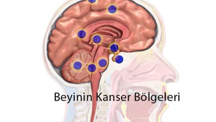 Beyin Kanseri Nasıl Önlenir