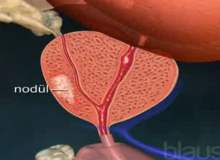 Prostat Kanseri Aileyi Ne Düzeyde Etkiler