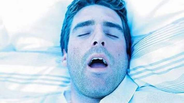 Uyku Apnesi (Solunum Duraklaması)