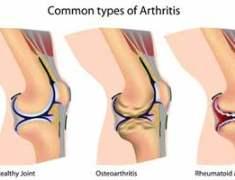 Diz Osteotomisi