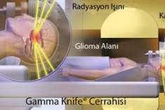 Gamma-Knife (Gamma Bıçağı) Radyo Cerrahi