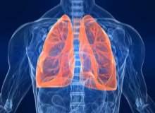 İnterstisyel Akciğer Hastalığı