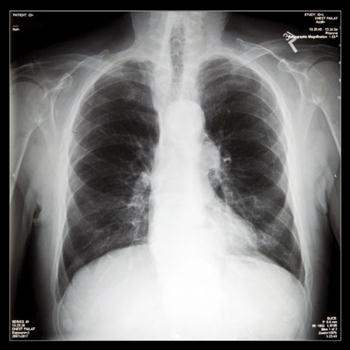 Akciğer Embolisi Nasıl Teşhis Edilir?