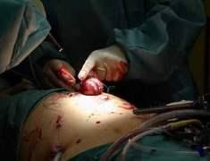 Böbrek Alımı (Nefrektomi)