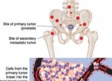 Açık Prostat Alımı Ameliyatı (Prostatektomi)