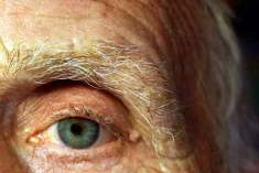 Diyabetik Göz Hastalığı (Retinopati)