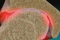 Diz Yaralanmaları ve Osteoartrit