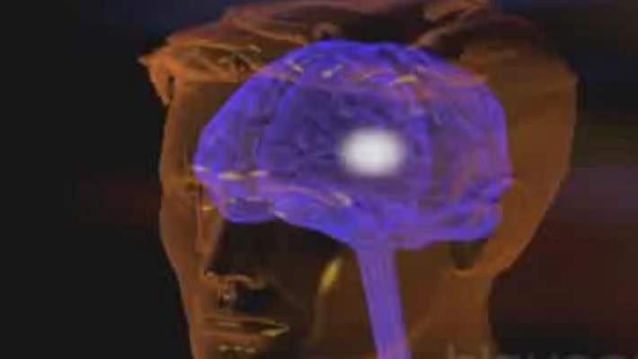 Epilepside Ameliyat Seçenekleri