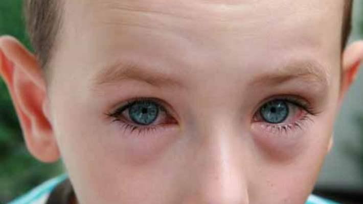 Juvenil Romatoid Artrit Gözü Nasıl Etkiler?