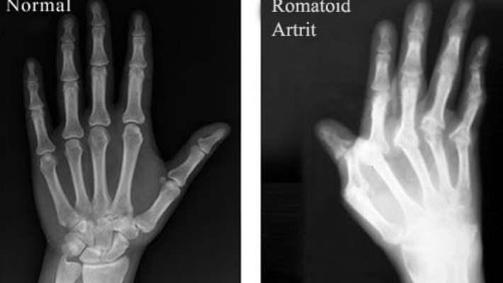 Romatoid Artrit İçin El Egzersizleri