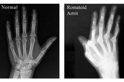 Parmaklarda artrit: Tedavi, nedenler, semptomlar