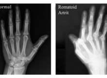El ve Parmaklarda Romatoid Artrit