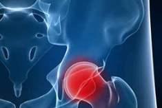 Kalça Romatoid Artriti