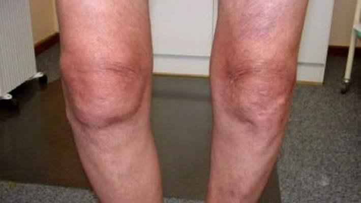 Diz Romatoid Artriti