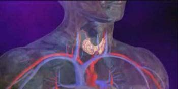 Hipertiroidizm (Tiroit Bezinin Aşırı Çalışması)