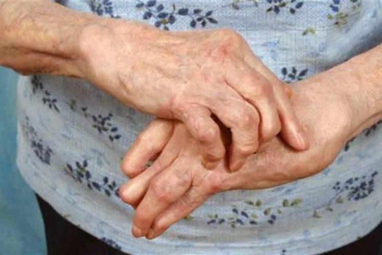 Hava Durumu ve Artrit