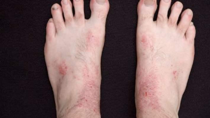 Atopik Dermatit