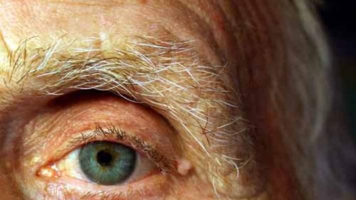 Sarı Nokta Hastalığı Tedavisi