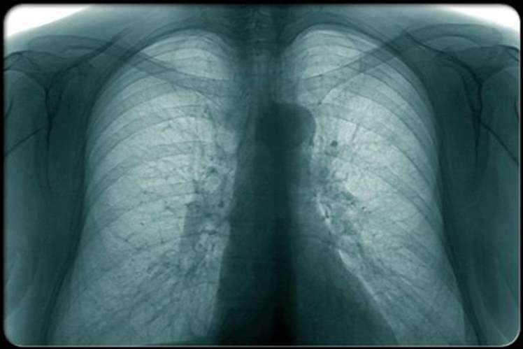 Göğüs Röntgeni