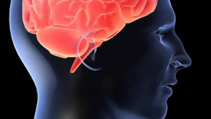 Elektrokonvülsif Terapi (Ect)